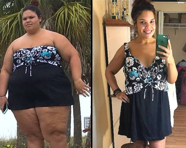 Girl Weight Before After Image